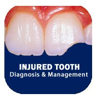Logo for Injured Tooth