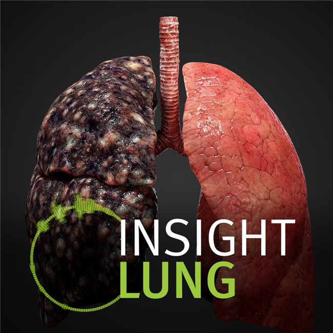 Logo for INSIGHT LUNG